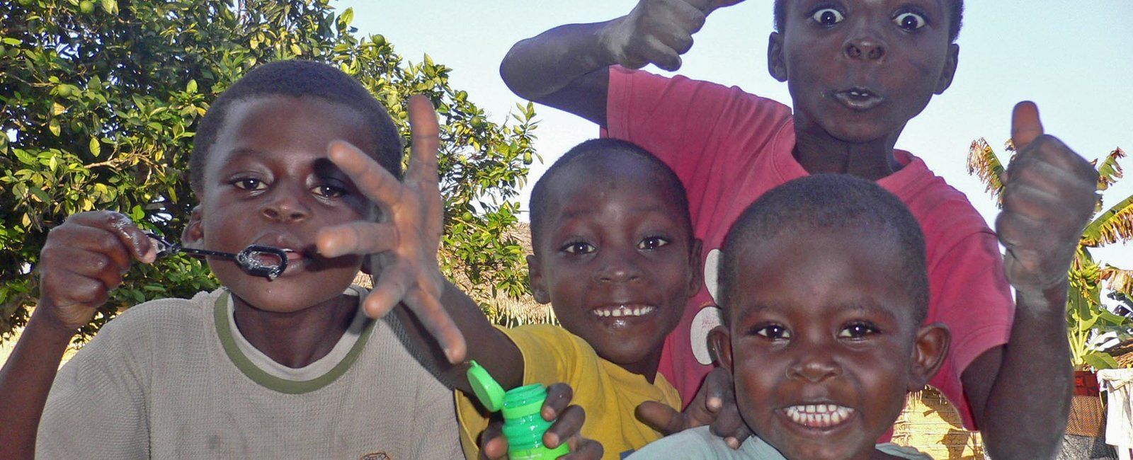 Alex Ward - Medical Electives in Ghana Takoradi
